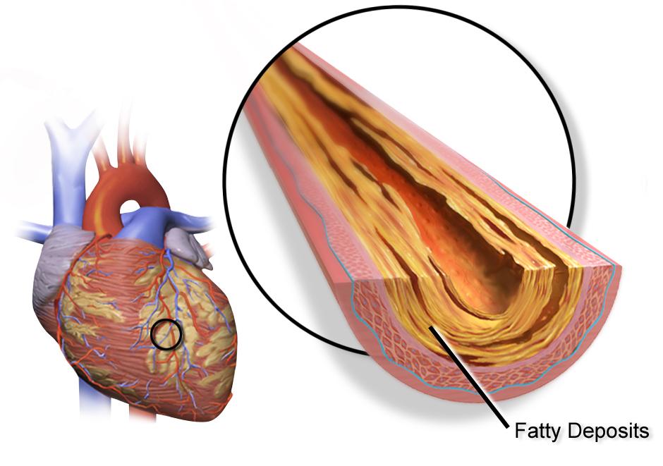 بیماری عروق کرونر قلب(علائم و درمان)