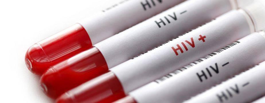 برای تشخیص HIV چه آزمایشاتی میتوان انجام داد؟