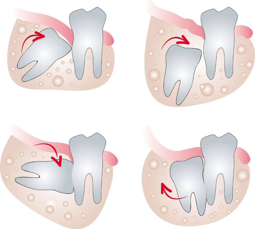 دندان عقل و مشکلات مربوط به آن