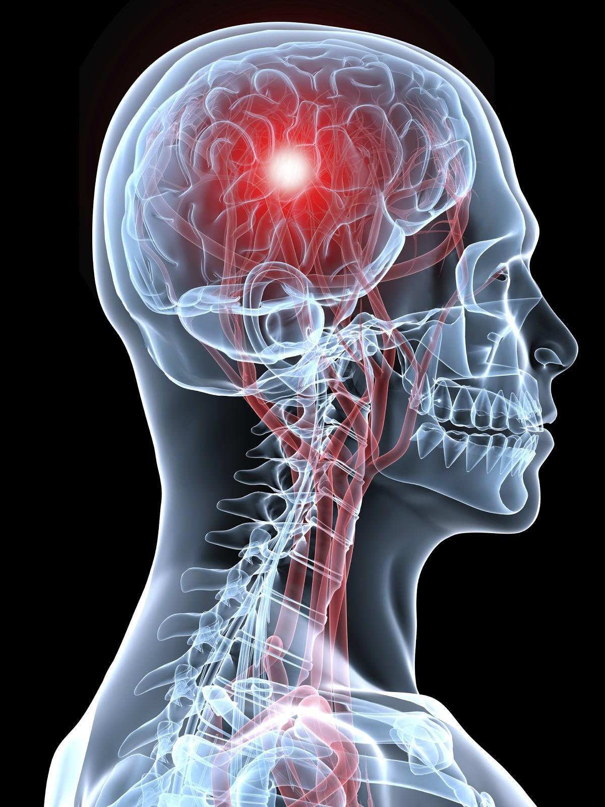آنچه باید در مورد علائم سکته مغزی بدانیم