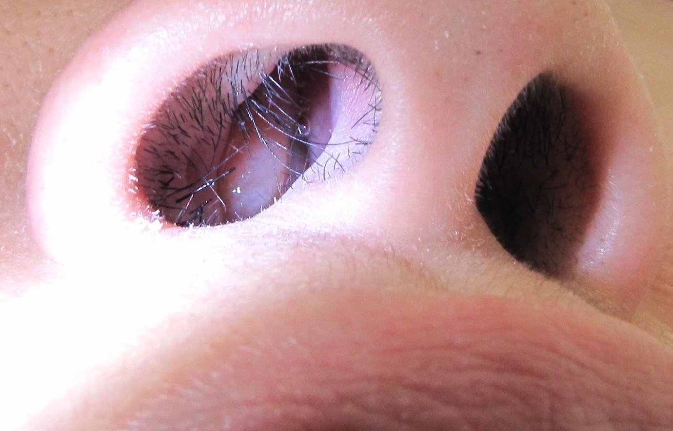 علل، علائم، تشخیص و درمان پولیپ بینی