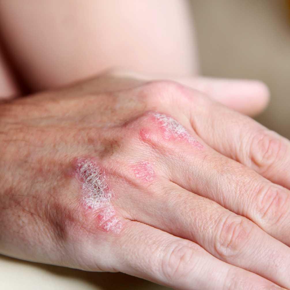 علائم بیماری صدف یا بیماری پسوریازیس