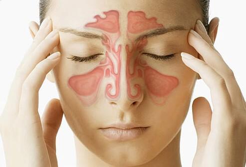 سردرد های سینوسی: علائم، درمان و آلرژی سینوسی