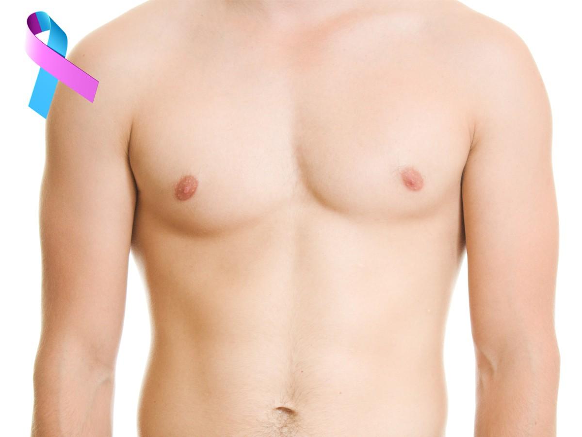 سرطان سینه در مردان، نادر اما ممکن