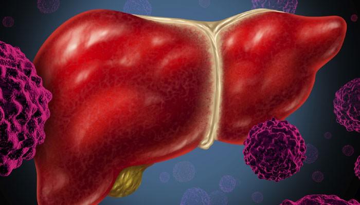 هپاتیت C انتقال، علائم و درمان