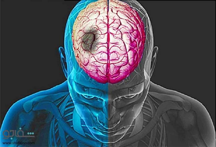 سکته مغزی - stroke