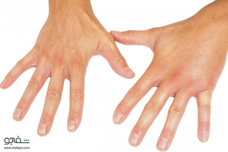 اسکلروز سیستمیک (اسکلرودرمی) - نوعی بیماری پیشرونده روماتیسمی