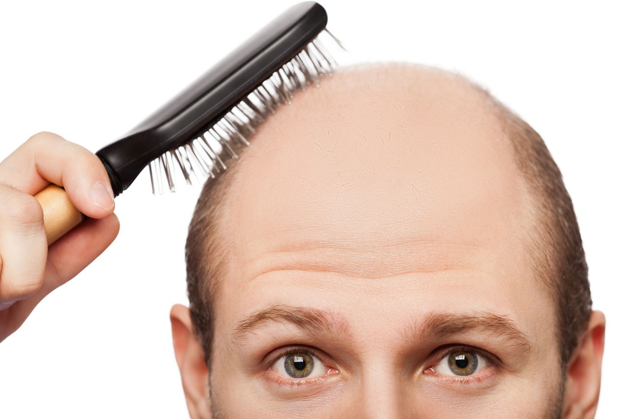 علل اصلی ریزش مو چه هستند و چه باید کرد؟