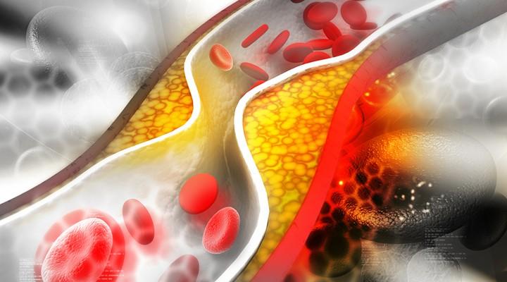 5 تغییر در شیوه زندگی که باعث بهبود وضعیت کلسترول شما می شود