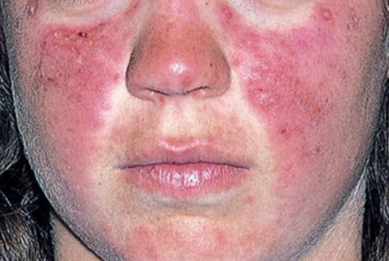 علائم بیماری لوپوس چه چیزهایی هستند؟