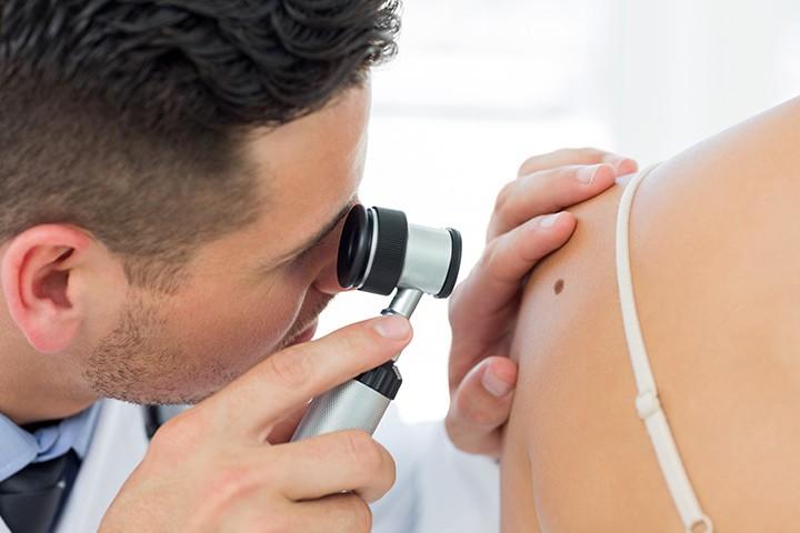 شناخت سرطان پوست، راه های تشخیص و درمان آن