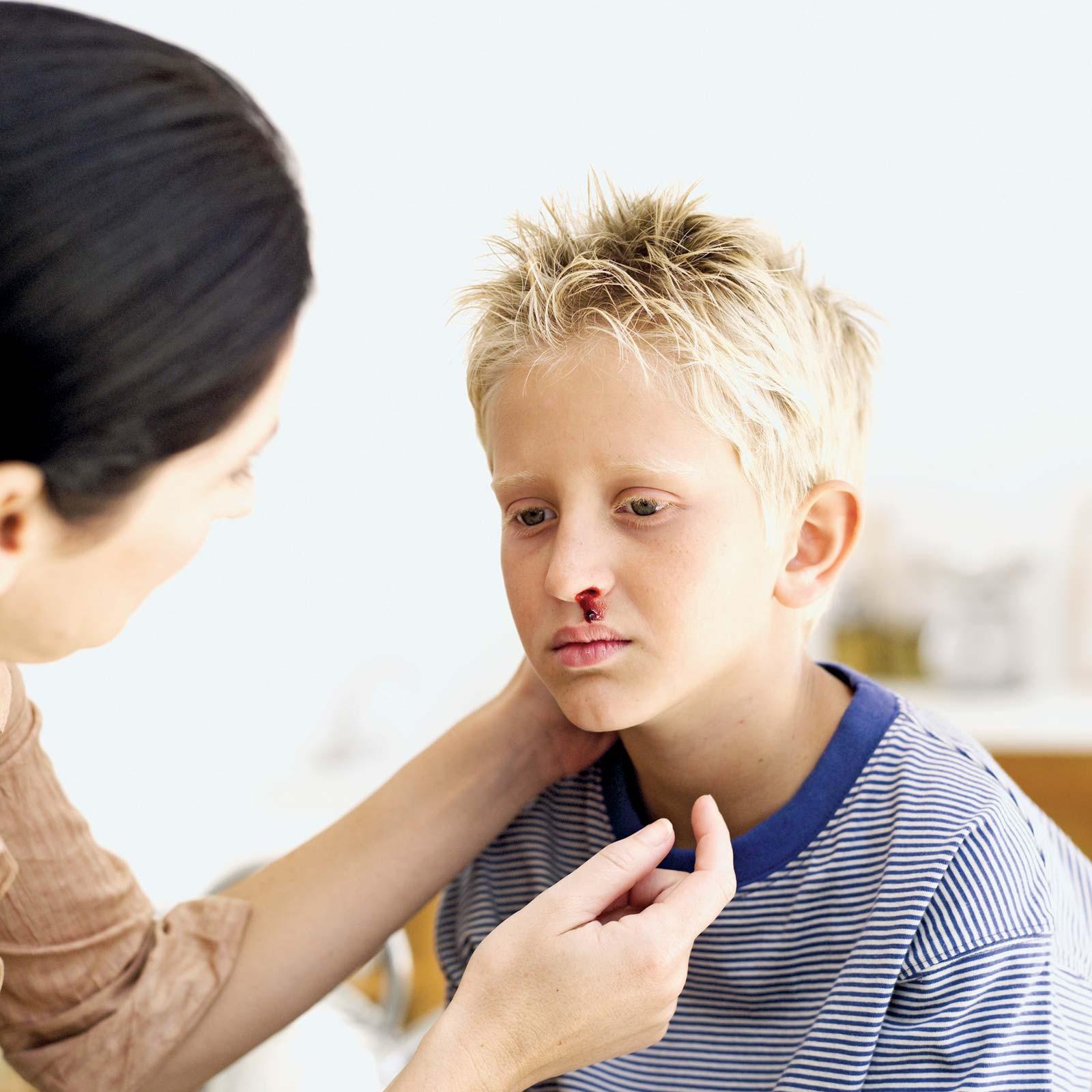 آنچه در مورد خون دماغ شدن کودکان باید بدانید