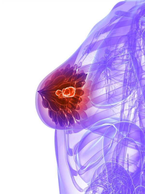 سرطان سینه (پستان): با علائم سرطان سینه بیشتر آشنا شویم