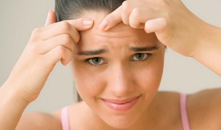 درمان جوش صورت و بدن با روش های خانگی