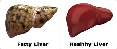 کبد چرب و یا استتاتوز