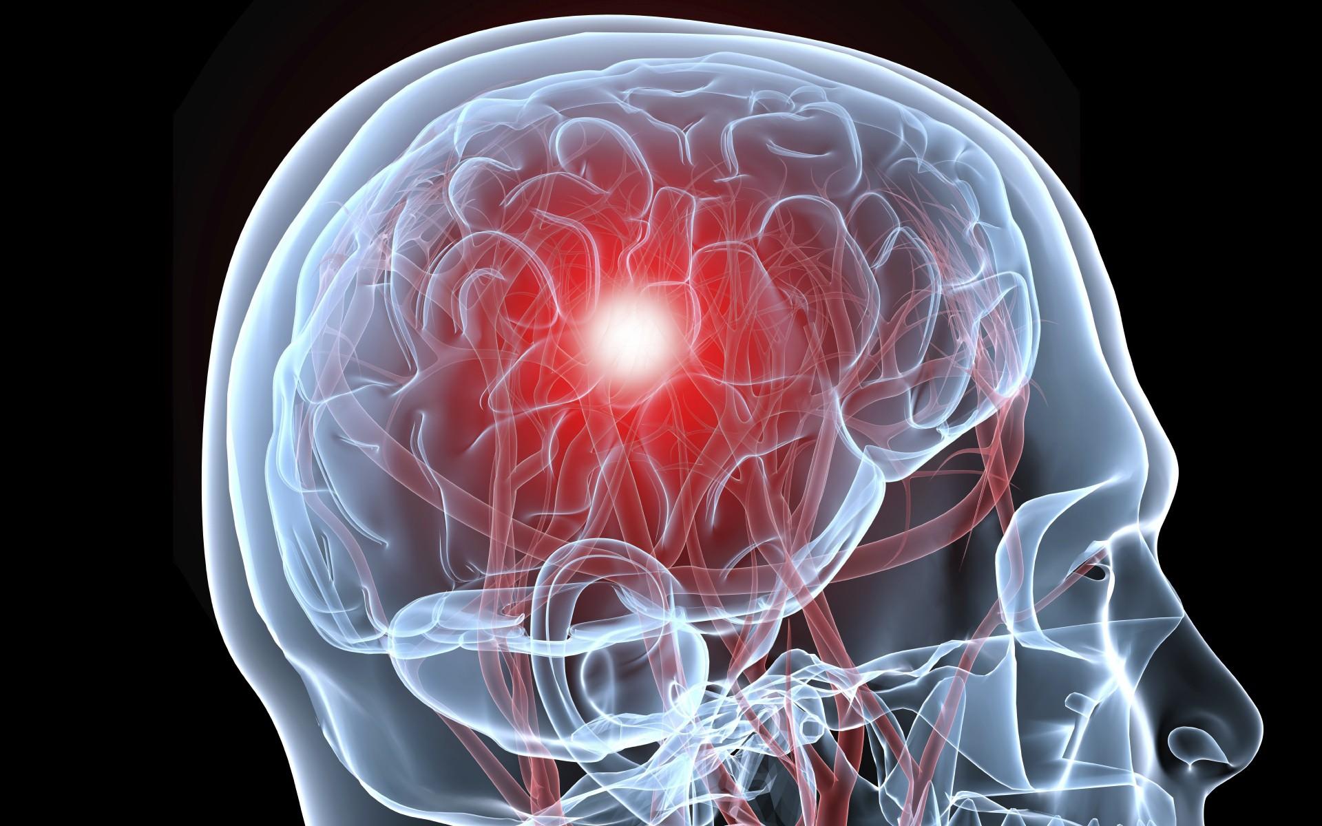 چگونه از بروز سکته مغزی دوم پیشگیری کنیم؟