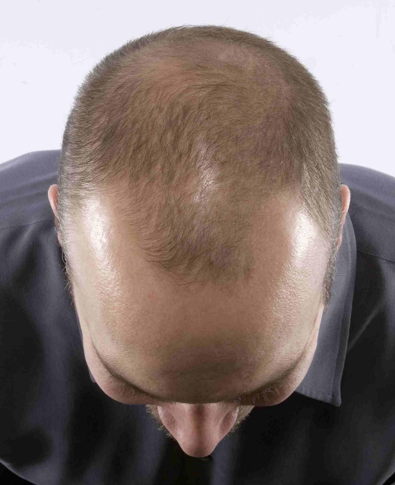 ریزش مو در مردان: پیشگیری و درمان ریزش مو
