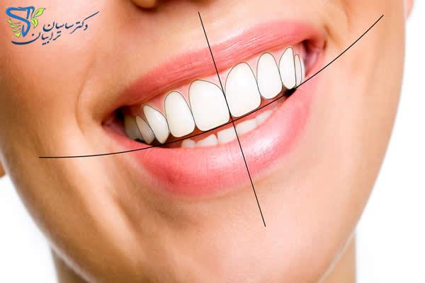 بهترین دکتر و متخصص برای اصلاح طرح لبخند