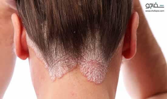 علائم، علل و درمان بیماری پوستی پسوریازیس یا بیماری صدف